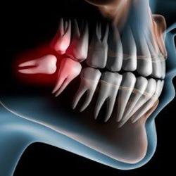 Procedural Notes   Sunrise Orthodontics